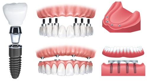 2016-04-20-00-55-54-61475-Be Well Dental dental implants